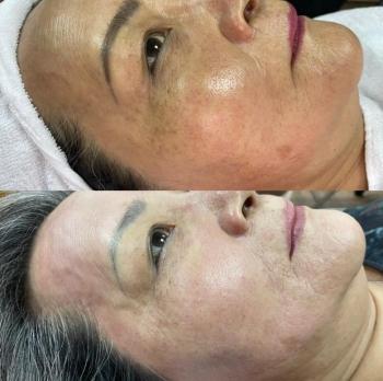 韓國MTS健康皮膚管理