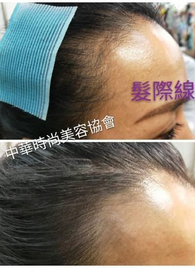 髮際線,髮線,仿真毛囊,孕髮,smp頭皮偽妝術,髮量稀疏,台北髮際線教學