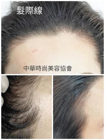 髮繡-髮際線