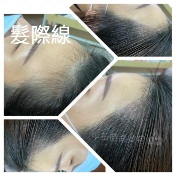 半永久髮繡-髮際線